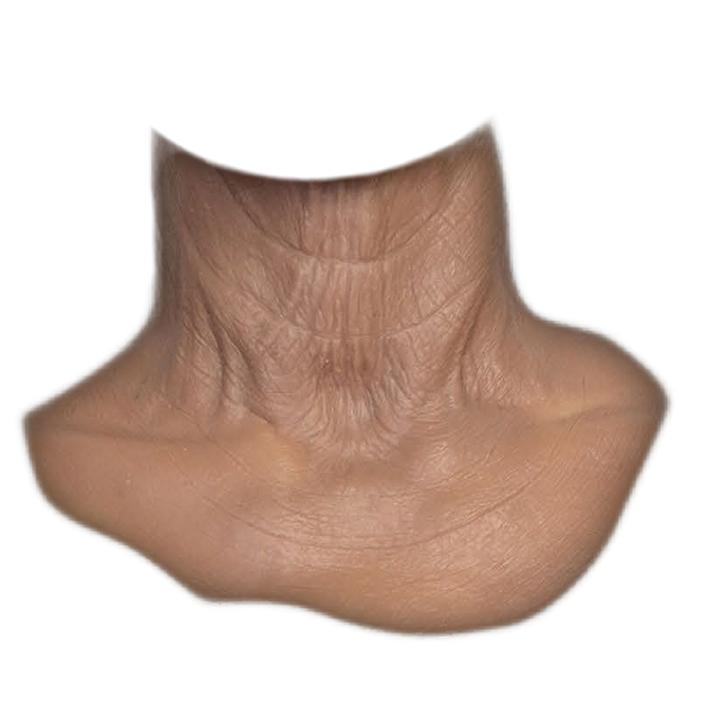 MFX Unisex Old Age Neck 70+ years